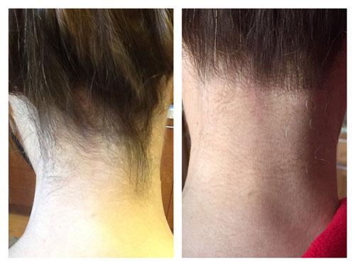 لیزر موهای پشت گردن