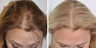 کاشتن مو در کرج برای زنان