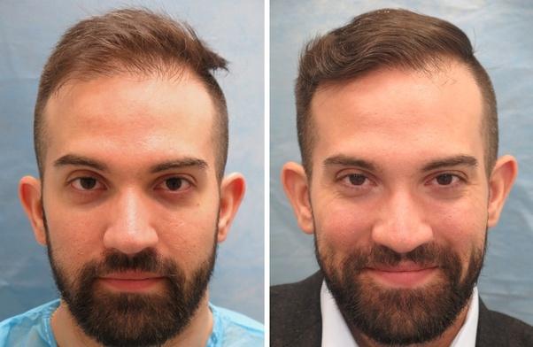 روش های متداول کاشت مو در کرج