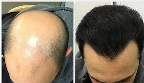 کاشت مو در چهارراه طالقانی کرج