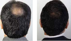 صفرتاصد کاشت مو در کرج