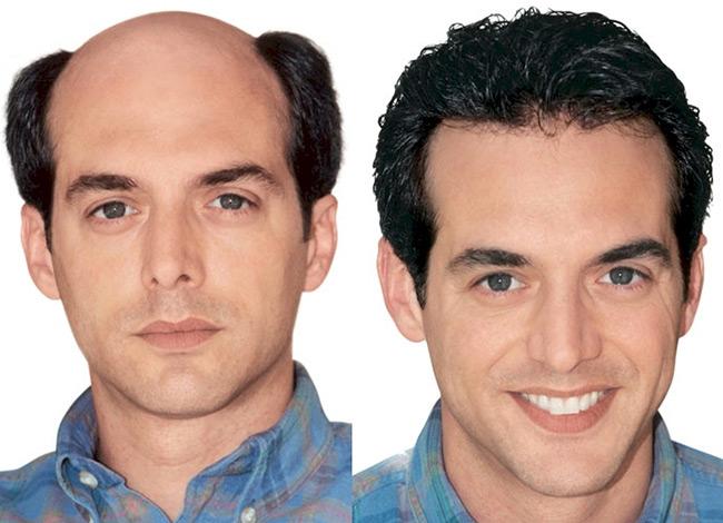متخصص کاشت مو در کرج